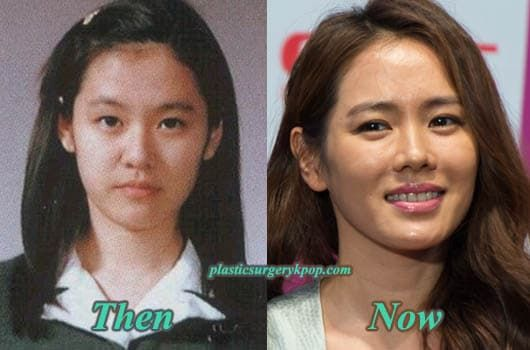 Jin Se Yeon Before Plastic Surgery photo - 1