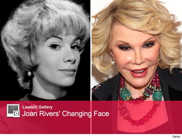 Joan Rivers Before And After Plastic Surgery photo - 1