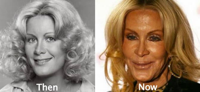 Joan Van Arc Plastic Surgery Before And After photo - 1