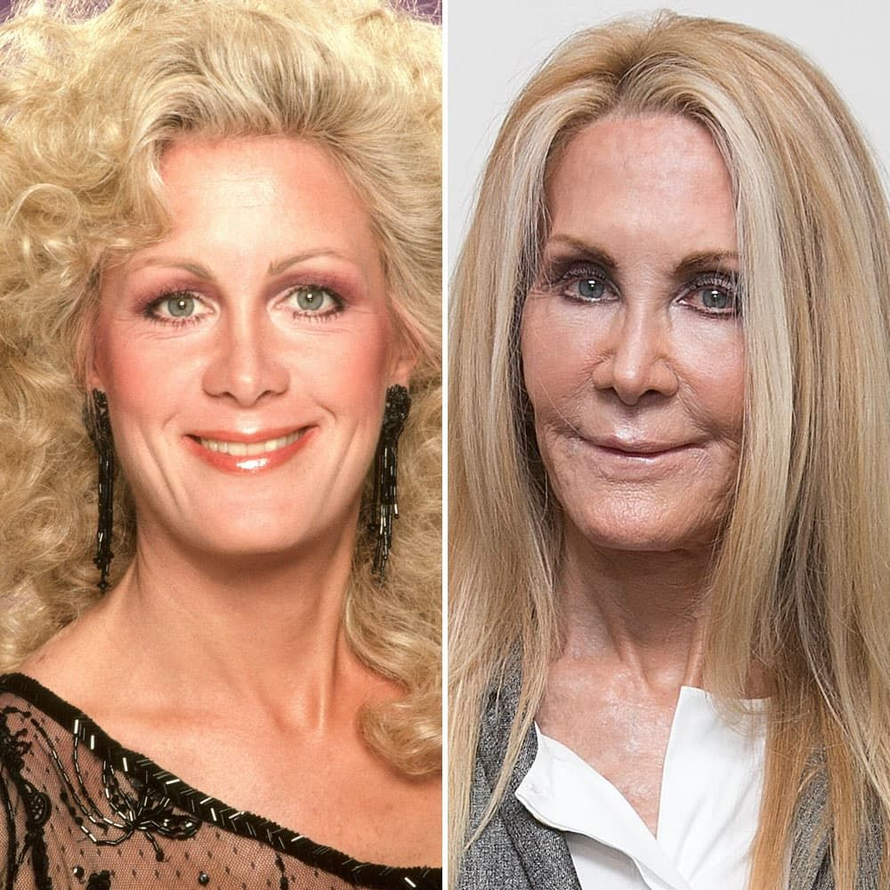 Joan Van Ark Before And After Plastic Surgery photo - 1