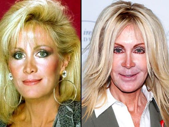 Joan Van Ark Plastic Surgery Before And After photo - 1