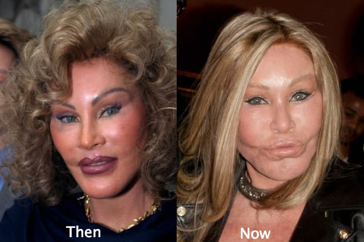 Jocelyn Wildenstein Pictures Before Plastic Surgery photo - 1