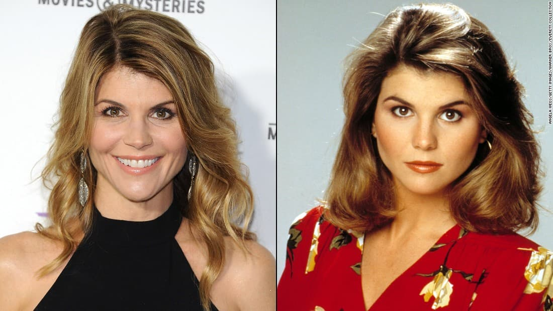 Joey From Full House Plastic Surgery Before And After photo - 1