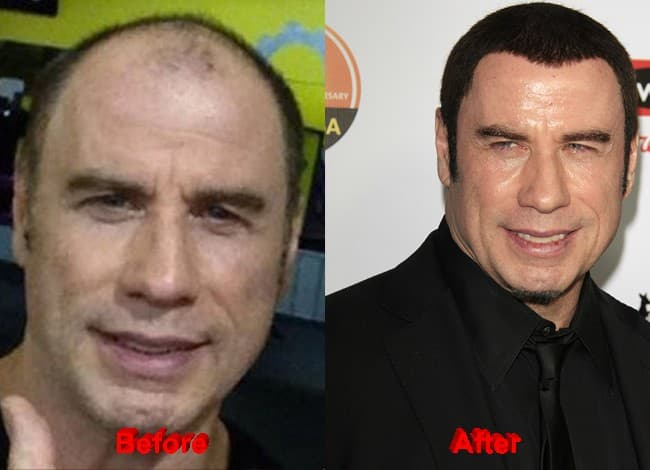 John Travolta Before Plastic Surgery photo - 1