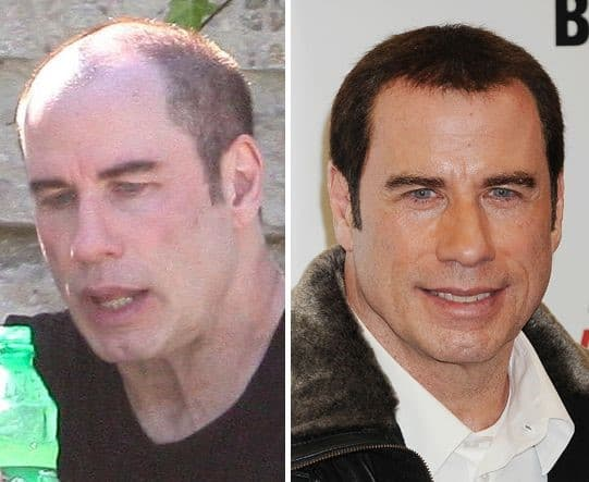 John Travolta Plastic Surgery Before And After photo - 1