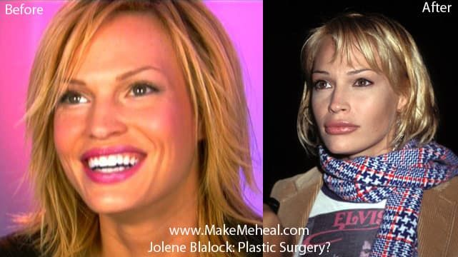 Jolene Blalock Before Plastic Surgery photo - 1