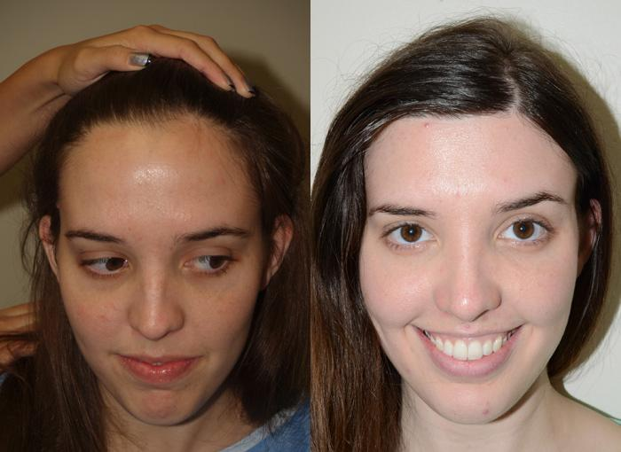 Jolie Plastic Surgery Before And After Photos Miami Fl photo - 1