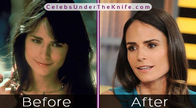 Jordana Btewster Before And After Plastic Surgery photo - 1
