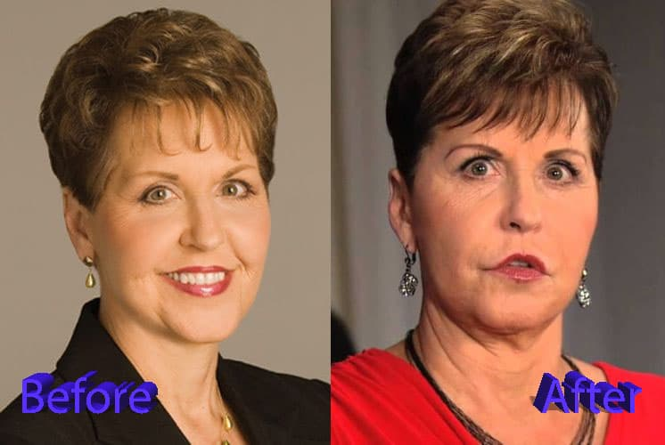 Joyce Meyer Plastic Surgery Before After photo - 1