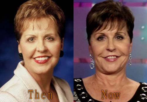 Joyce Meyers Before Plastic Surgery photo - 1