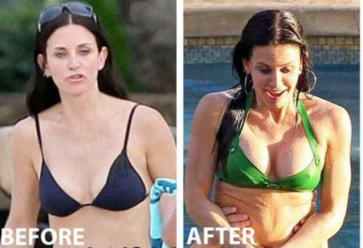 Judge Reinhold Before After Plastic Surgery photo - 1