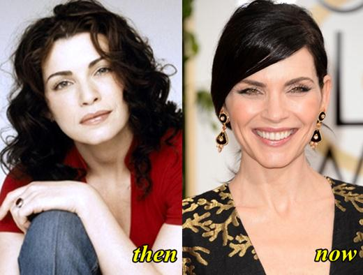 Julianna Margulies Before Plastic Surgery photo - 1