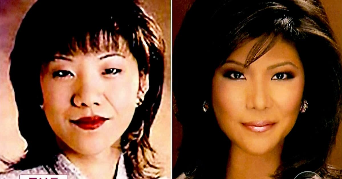 Julie Chen Plastic Surgery Before And After photo - 1