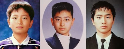 Jung Il Woo Plastic Surgery Before And After photo - 1