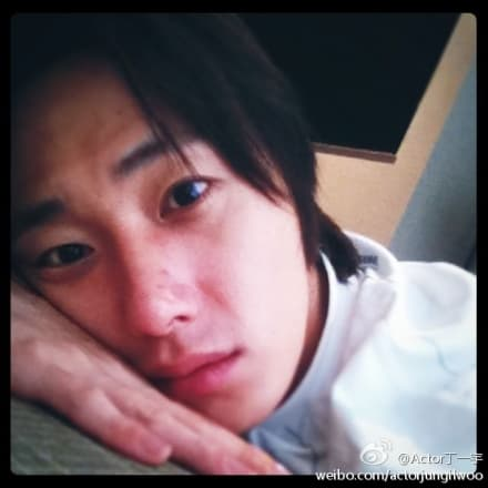 Jung Il Woo Plastic Surgery Before And After Photos photo - 1