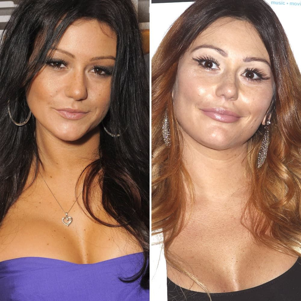 Jwoww Before And After Face Plastic Surgery photo - 1
