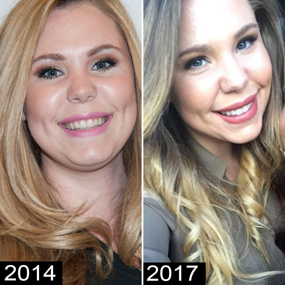 Kailyn Lowry Plastic Surgery Before And After Pics photo - 1