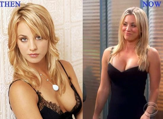 Kaley Couco Before And After Plastic Surgery photo - 1