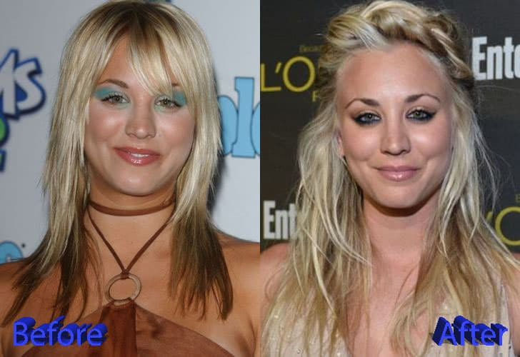 Kaley Cuco Before Plastic Surgery photo - 1