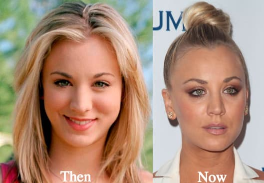 Kaley Cuoco Plastic Surgery Before photo - 1