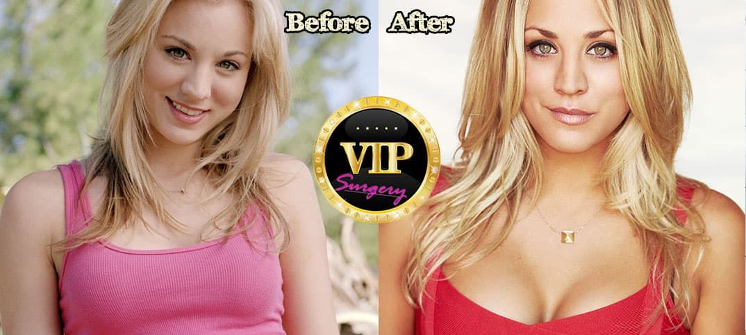 Kaley Cuoco Plastic Surgery Before After photo - 1