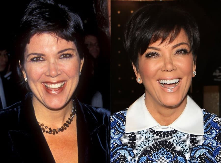 Kardashian And Jenner Before And After Plastic Surgery photo - 1