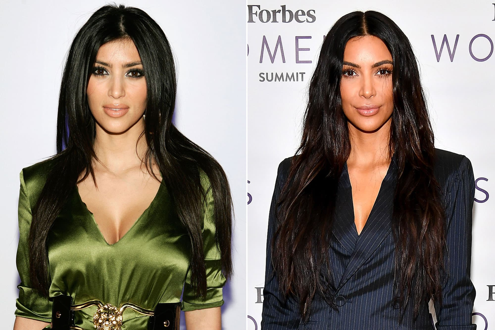 Kardashian Family Before And After Plastic Surgery photo - 1