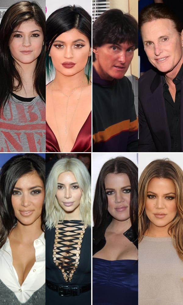 Kardashians Family Photo Before Plastic Surgery photo - 1