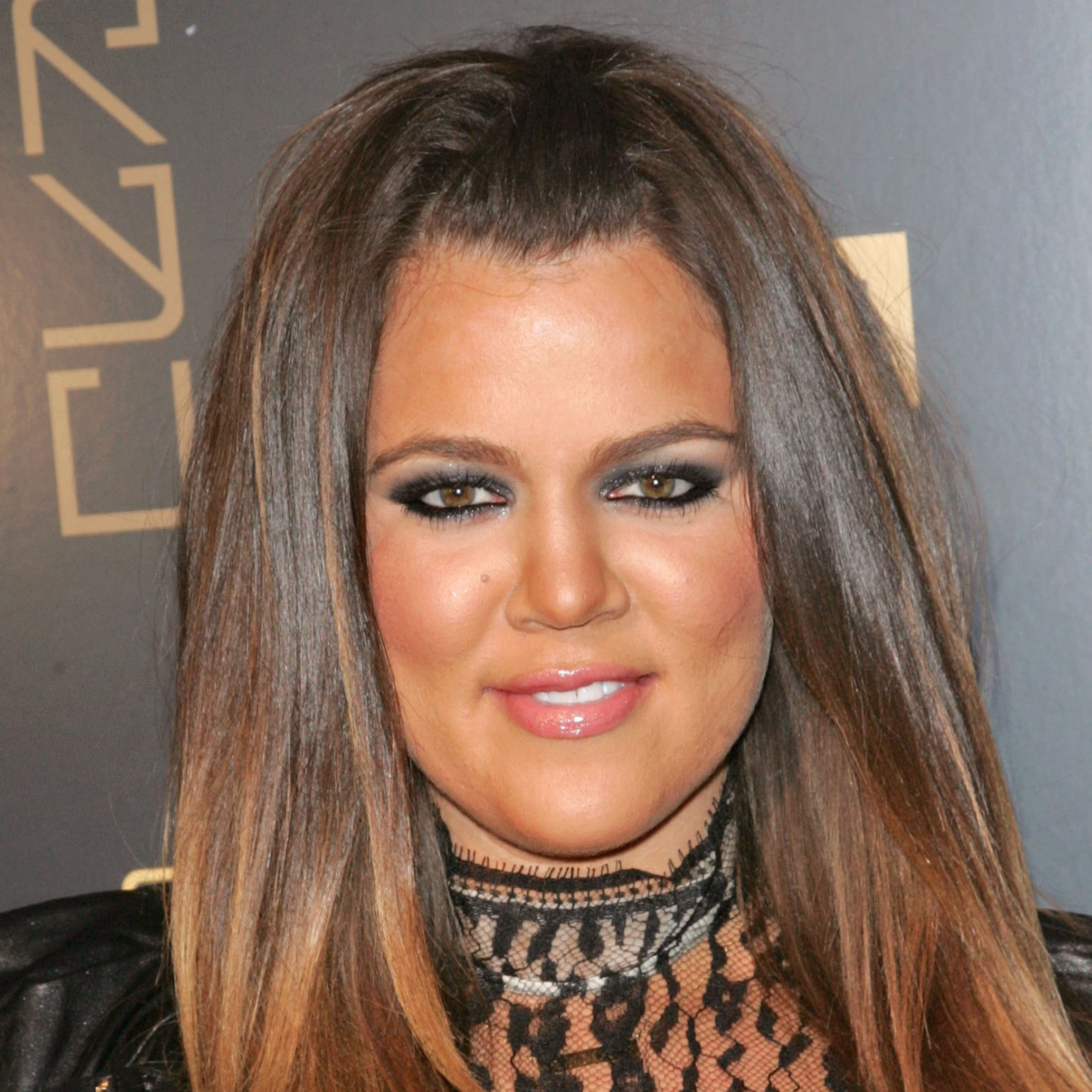 Kardashians Plastic Surgery Before And After photo - 1