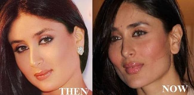 Kareena Kapoor Before Plastic Surgery photo - 1