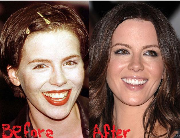 Kate Beckinsale Before And After Plastic Surgery photo - 1