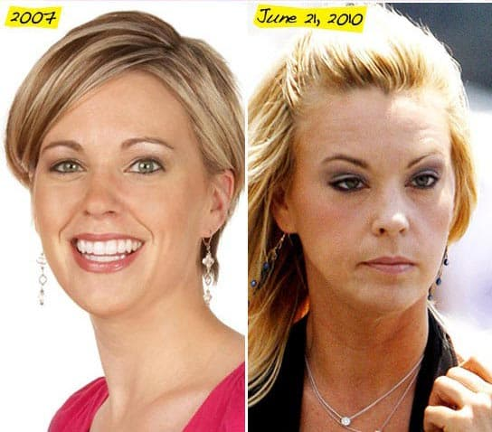 Kate Gosselin Plastic Surgery Before And After photo - 1