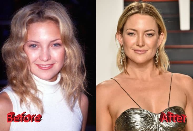 Kate Hudson Before Plastic Surgery photo - 1