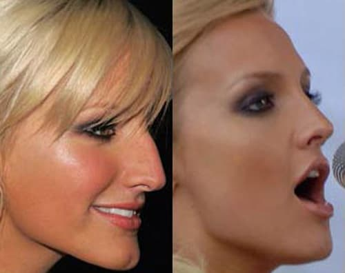 Kathy Griffin Before After Plastic Surgery photo - 1