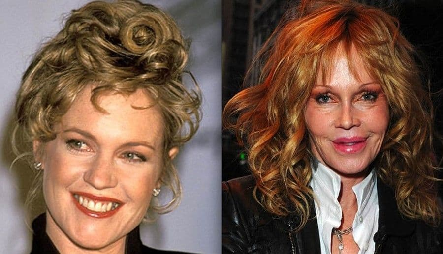 Kathy Griffin Plastic Surgery Before And After photo - 1