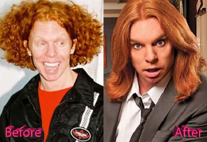 Kathy Griffin Plastic Surgery Before And After Pictures photo - 1