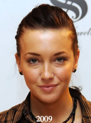 Katie Cassidy Plastic Surgery Before And After photo - 1