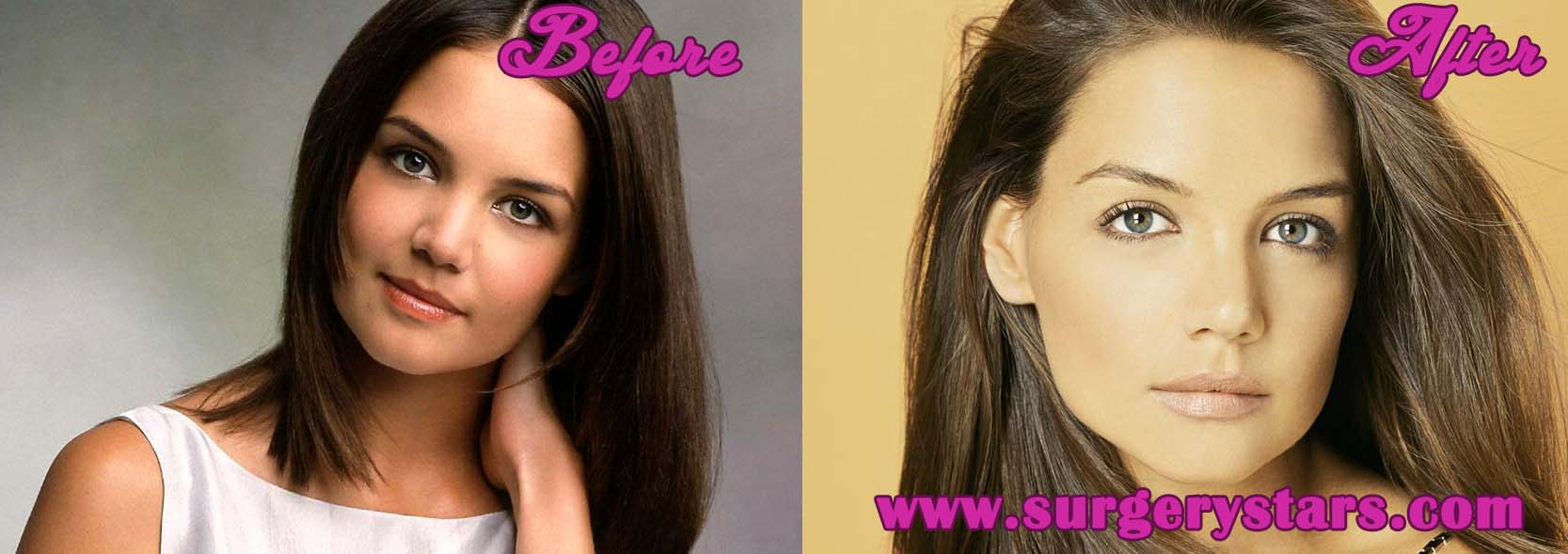 Katie Holmes Plastic Surgery Before And After photo - 1