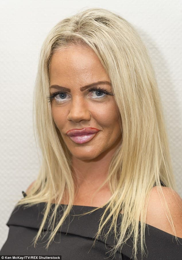 Katie Price Before After Plastic Surgery photo - 1
