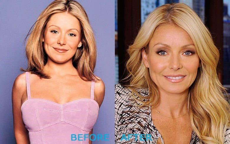 Wiglesworth plastic surgery photo - 1