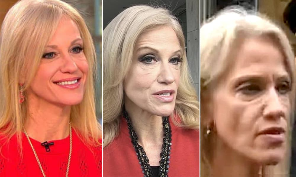 Kellyanne Conway Plastic Surgery Before After photo - 1