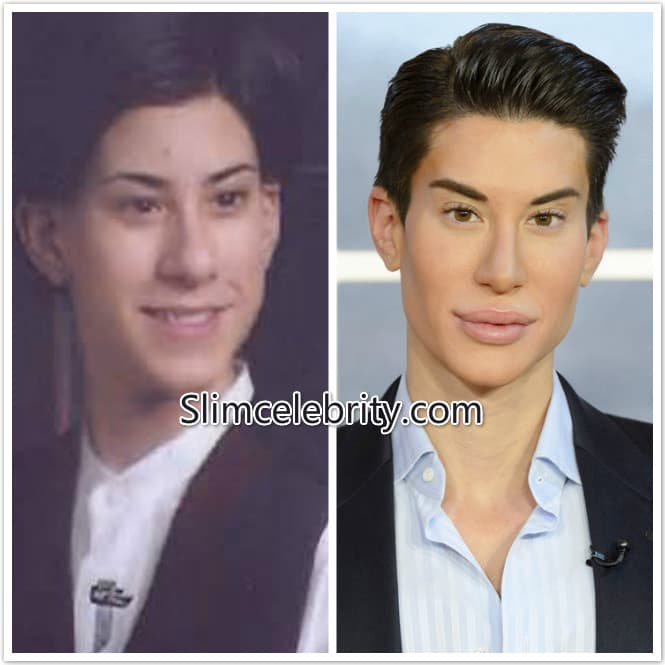 Ken Plastic Surgery Before And After photo - 1