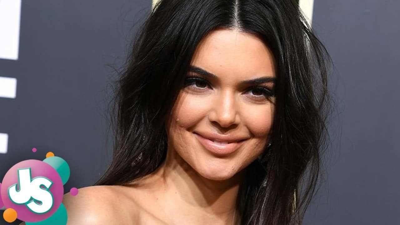 Kendall Jenner Before After Plastic Surgery photo - 1