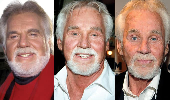 Kenny Rogers Before And After Plastic Surgery Pictures photo - 1