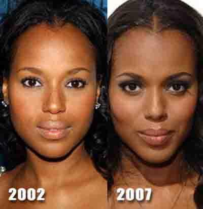 Kerry Washington Plastic Surgery Before And After Pictures photo - 1