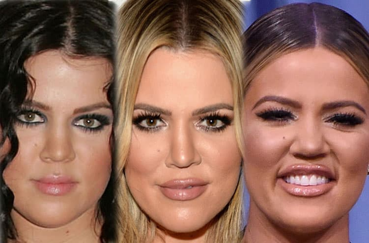 Khloe Kardashian Plastic Surgery Full Body Before After photo - 1