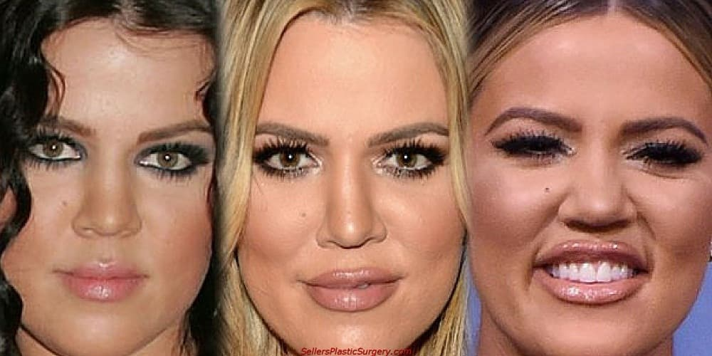 Khloe Plastic Surgery Before And After photo - 1