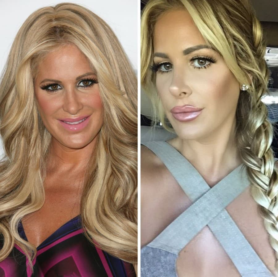 Kim Biermann Before And After Plastic Surgery photo - 1