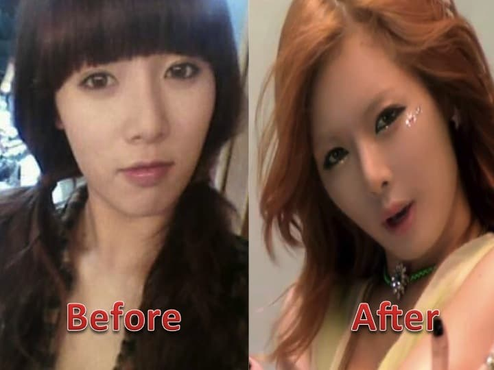 Kim Hyuna Before And After Plastic Surgery photo - 1