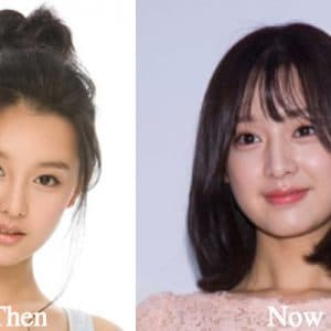 Kim Jae Kyung Before Plastic Surgery photo - 1